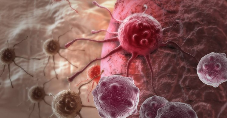 Novel Wearable Captures Cancer Cells Directly from Blood