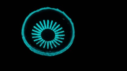 Glow-in-the-Dark Contact Lenses Could Help Prevent Blindness