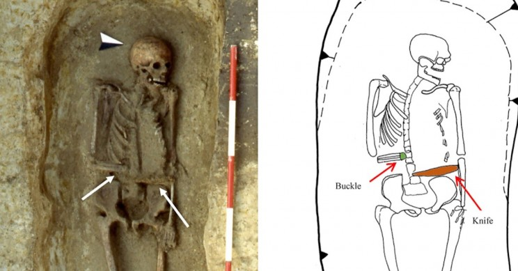 Archaeologists Find Skeleton of Medieval Man Who Used a Knife as a Prosthetic Limb