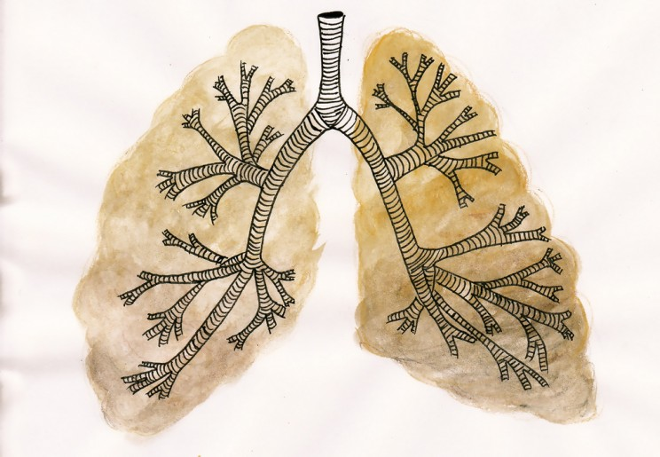 Researchers Found Tiny Stomach Hidden Inside Lung Tumors
