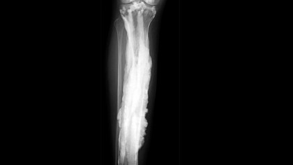 Researchers Finally Solved the Mystery Behind Rare Bone Disease