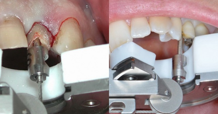 This Innovative Tool Could Be The Answer To Pain Free Tooth Extractions