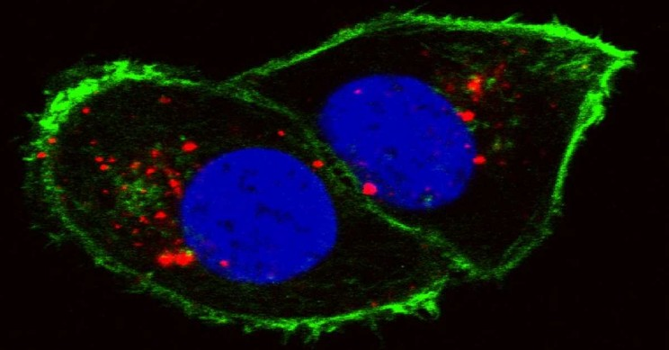 Cancer Cell Spread And Growth Can Now be Monitored With New AI System