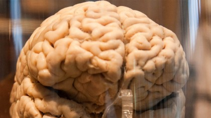 Doctors in India Remove the World's 'Largest Brain Tumor', Weighing 1.87kg