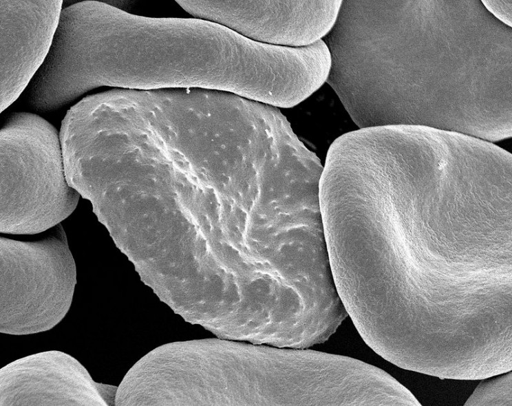 New Technology Helps Researchers Fight Deadly Malaria