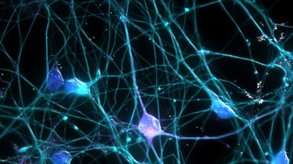 New Artificial Neurons Can `Think` Faster Than You