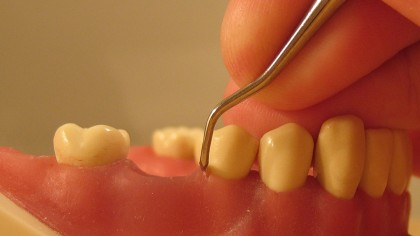 New Research Links Chronic Gum Disease and Alzheimer's