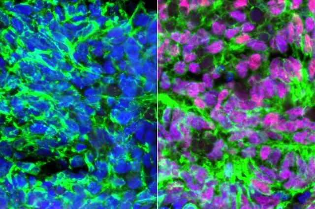 Researchers Develop Cells that Can Restore the Sense of Touch