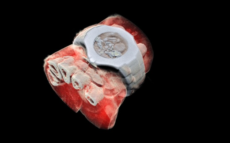 World's First 3D Color X-Rays of Human Body Produced Using CERN Technology