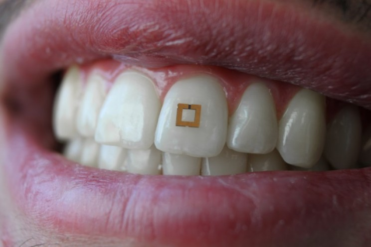 Scientists Develop Tooth Sensors that Can Monitor Your Diet