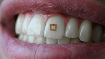 Tooth Sensors Could Be Used to Monitor Your Diet