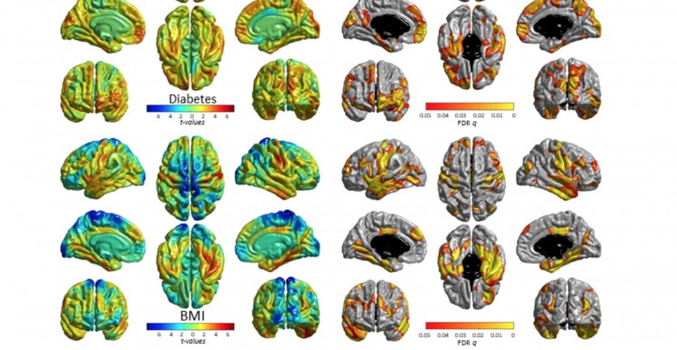 Vascular Risks Are Linked to Unhealthy Brain: Fresh Study Shows