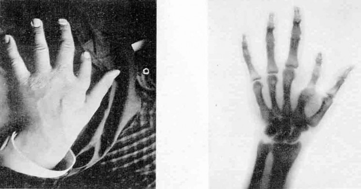 Everything You Need to Know About the X-Ray and Its Accidental History