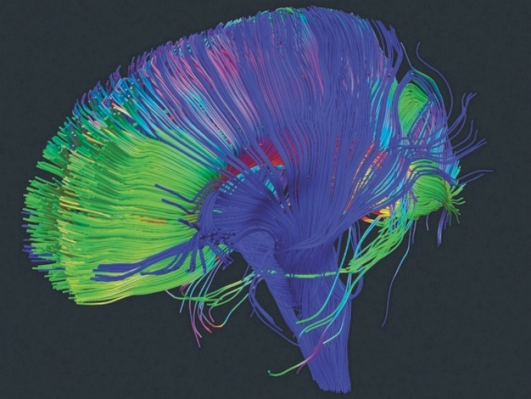 Scientists Are Using Holograms to Edit Brain Activity