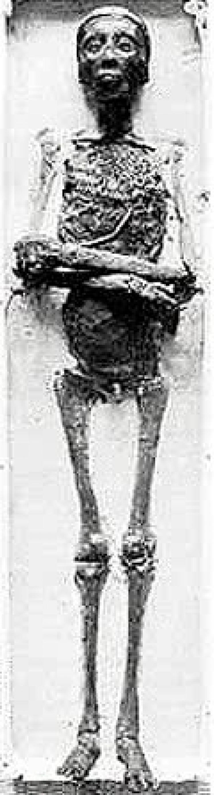 King Tutankhamun's mummy
