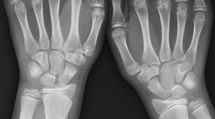 FDA Approves AI Tool That Can Detect Wrist Fractures