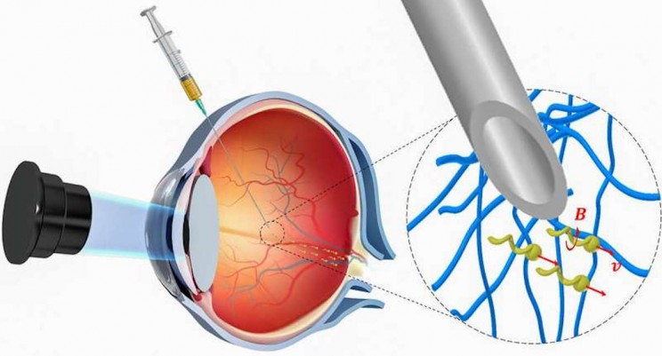Tiny Robots Propel Through Human Eyeball to Deliver Drugs