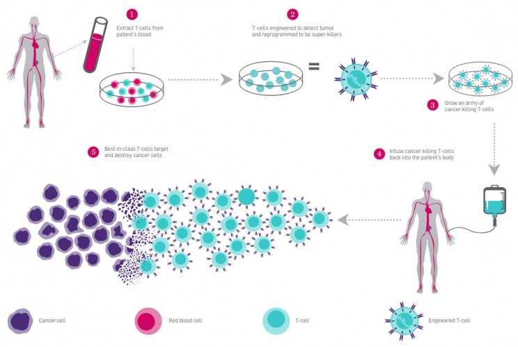 T-Cell Therapy