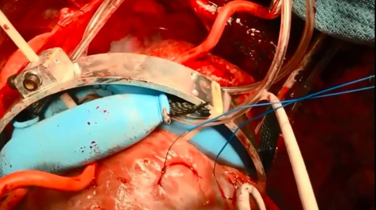 This Soft Robot Saves Failing Hearts By Mimicking Cardiac Muscle