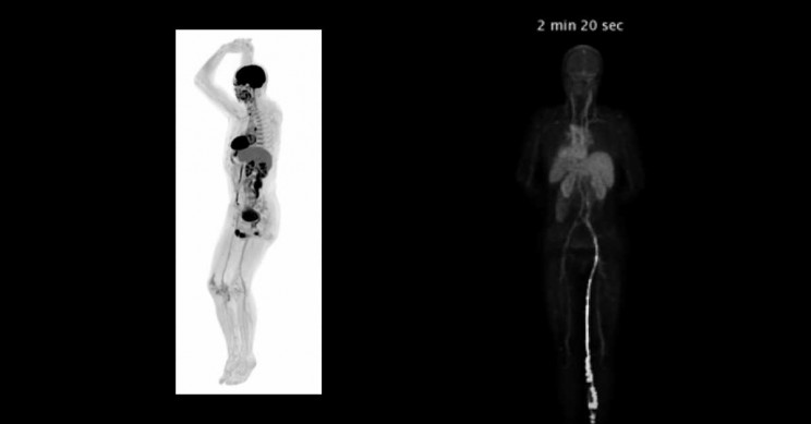 The First Human Images by the World's First Total-body Scanner Are Here