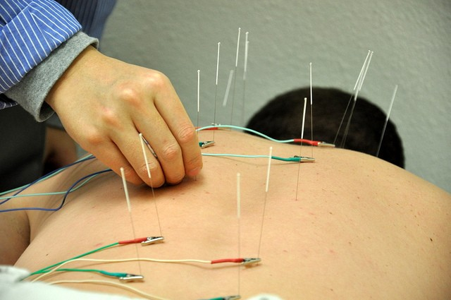 New Study Suggests Acupuncture Can Remap the Brain to Relieve Chronic Pain