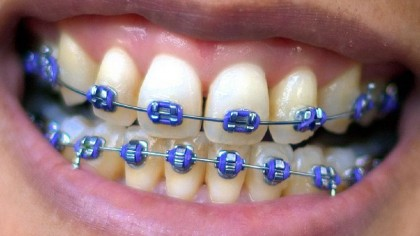 Orthodontists Say Braces Should be Worn for Life to Keep Teeth Straight