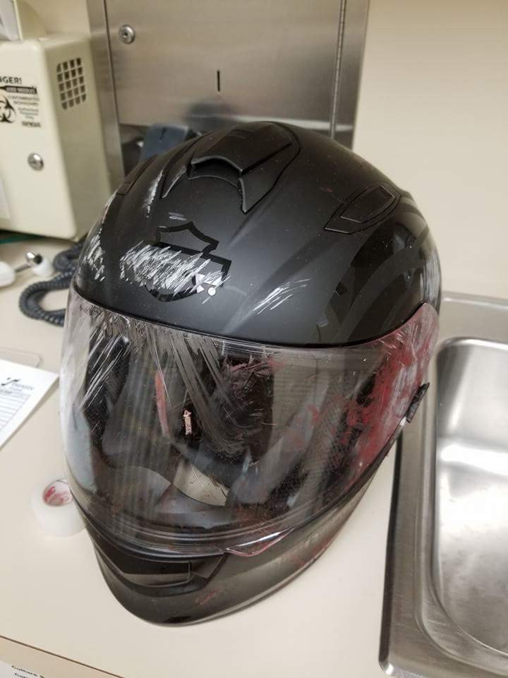 These Scary Post-Accident Photos Prove That Helmets Save Lives