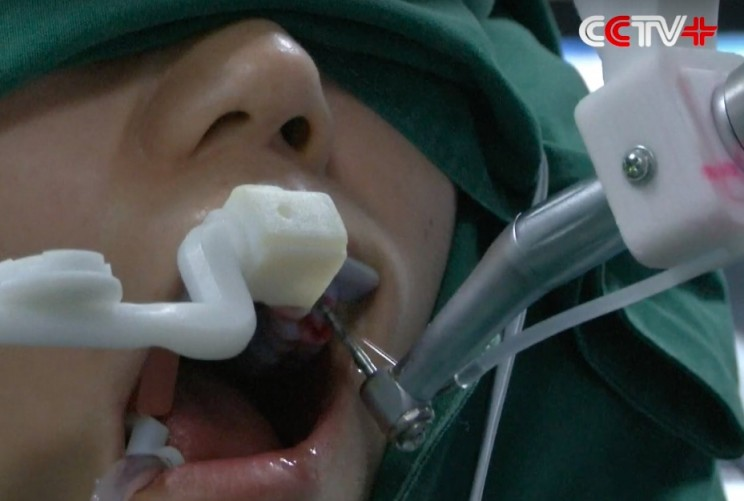 A Chinese Robot Just Performed the First Fully Automated Dental Surgery Ever