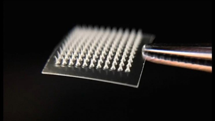 Researchers Develop A Tiny Skin Patch That Can Melt Excess Body Fat