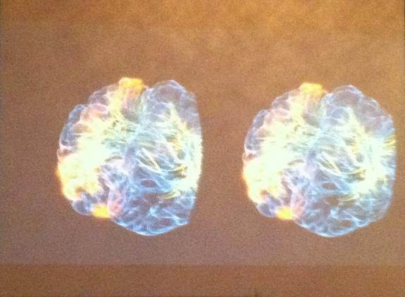 virtual-reality-brain-interior