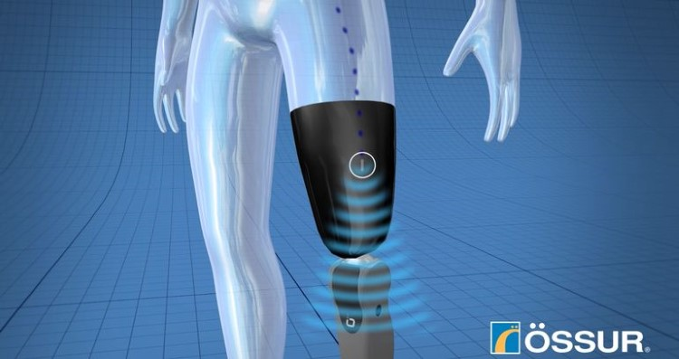 ossur-mind-control-limb.PNG