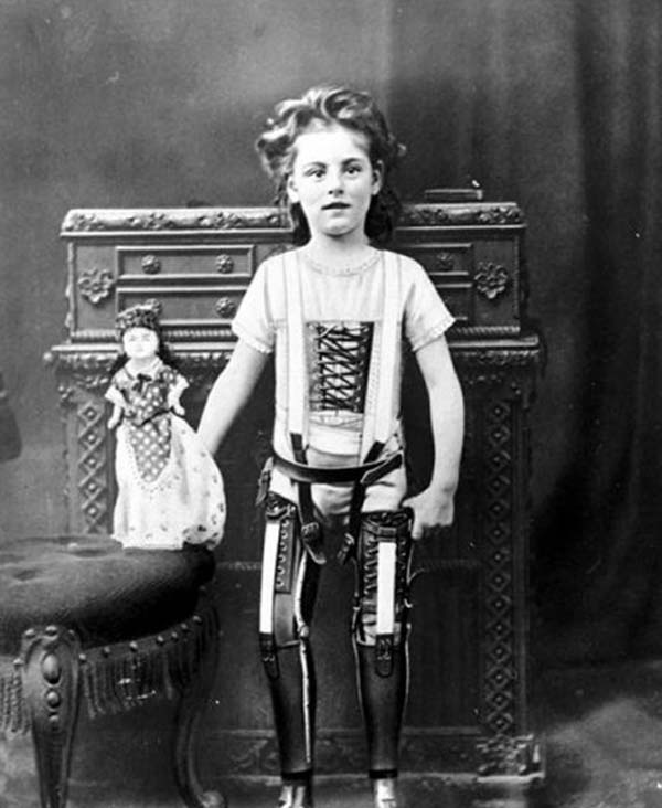 5. A child with artificial legs (1898)