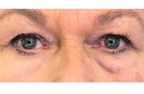 weird-second-skin-erases-wrinkles-wounds-eye-670