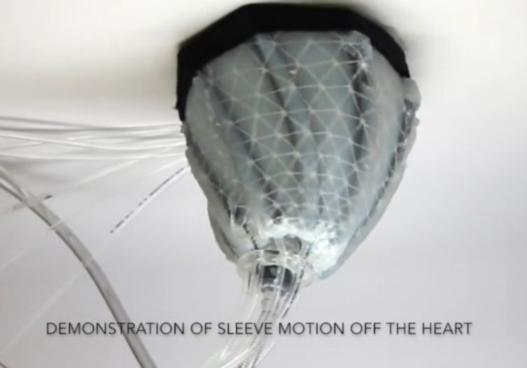 This New Soft Robot Could Save Lives of People With Heart Conditions