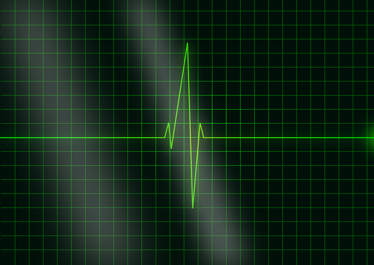 Your Heartbeat May Soon Become Your Password