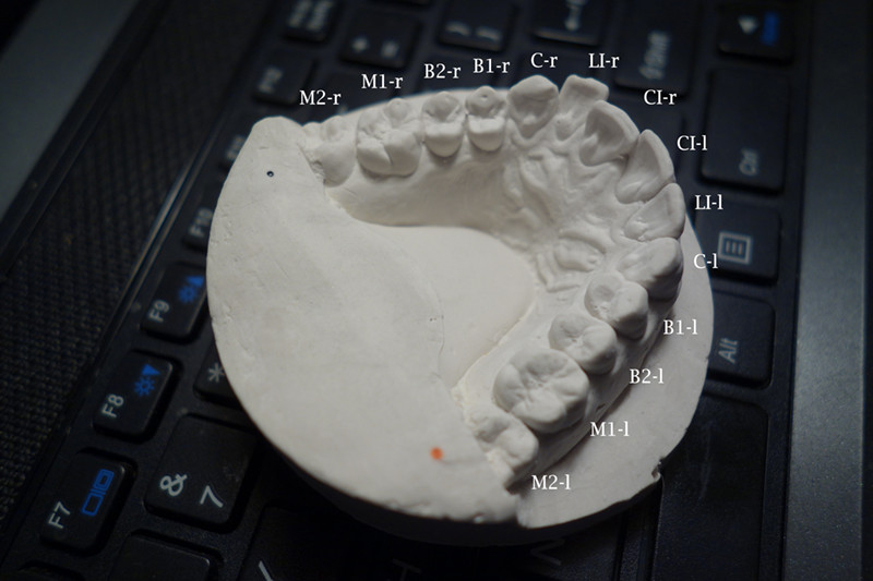 teeth mold showing an overlapping front tooth