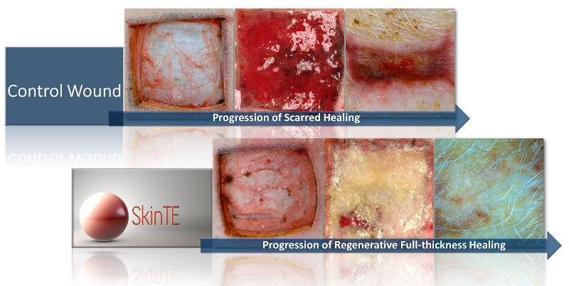 Severe Burn Victims May Soon Be Able to Regrow Hair-Bearing Skin