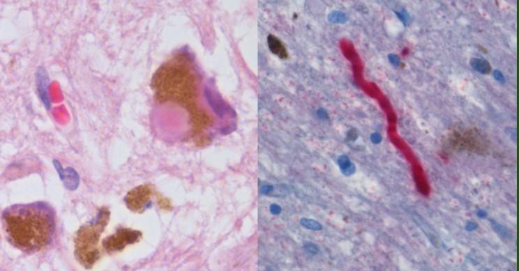Stem Cells Bring Hope of Treating Parkinson's by Repairing the Brain