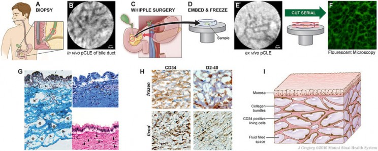Scientists Discover a New Human Organ Called the 'Interstitium'