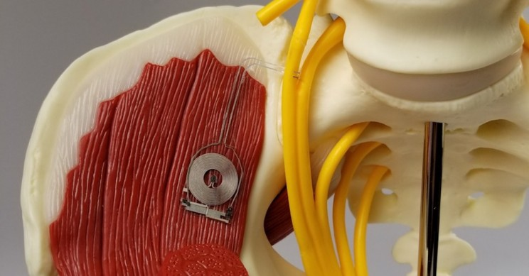 These Bioelectronic Medical Devices Disappear After Healing Damaged Nerves