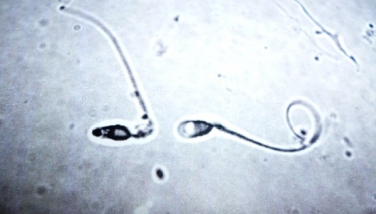 NASA Sends Human and Bull Sperm to ISS to Study Reproduction in Space