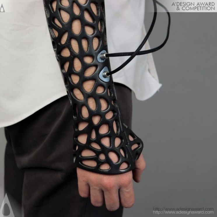 3D printed cast can heal bones 40% faster thanks to ultrasound