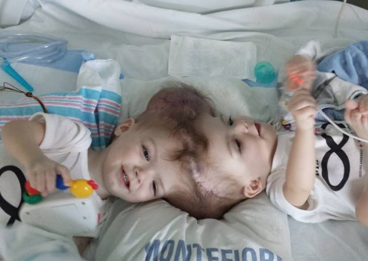 Doctors Successfully Separate Twin Boys Conjoined at the Head