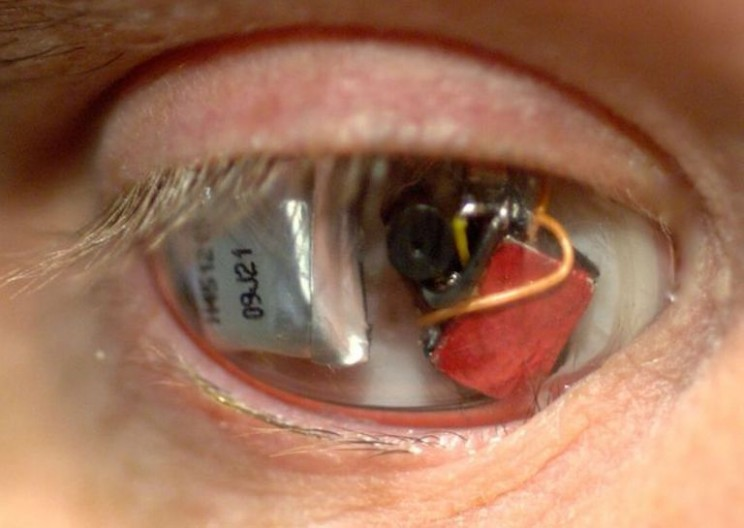 Filmmaker 'Eyeborg' Replaced His Deteriorating Eye with a Video Camera