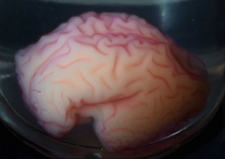 Scientists Replicate Folding of Fetal Brain