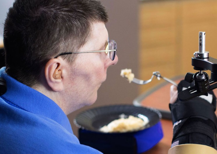 Neuroprosthetics Let Paralyzed Patient to Move His Arm Just By Thinking