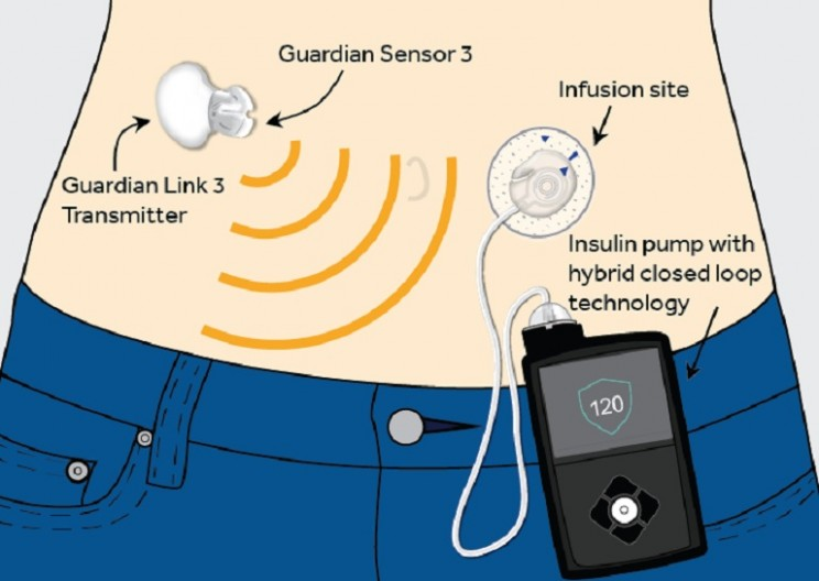 World's First 'Artificial Pancreas' Just Approved