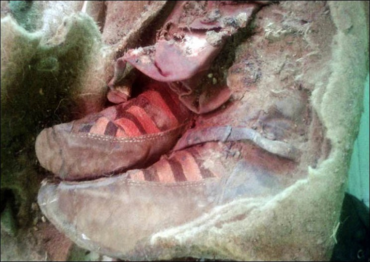 1500 Year Old Mummy Found Wearing 'Adidas Sneakers'