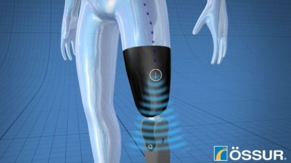 Bionic prosthetic leg can be controlled by thoughts