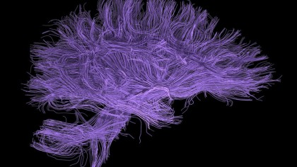These Mini-Brains Could Lead to Huge Possibilities